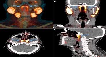 Cientistas podem ter descoberto novo órgão na região do crânio